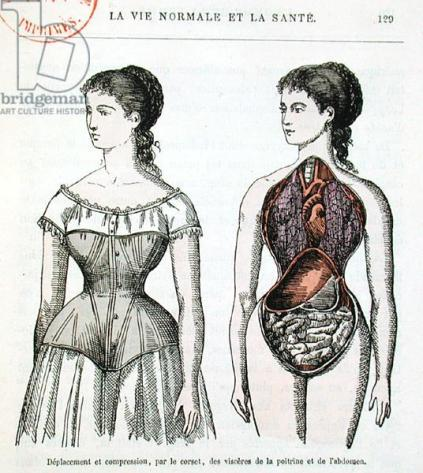 The Harmful Effects of the Corset, illustration from 'La Vie Normale et la Sante' by Dr Jules Rengade (b.1841) c.1880 (colour litho)